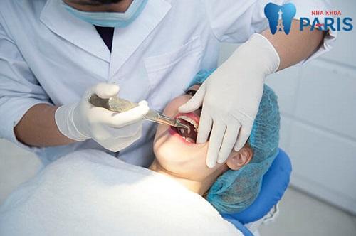 không nhổ răng số 8 có sao không