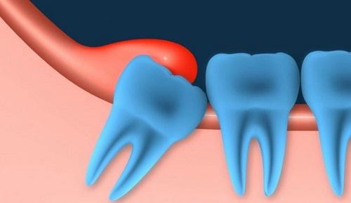 Không nhổ răng số 8