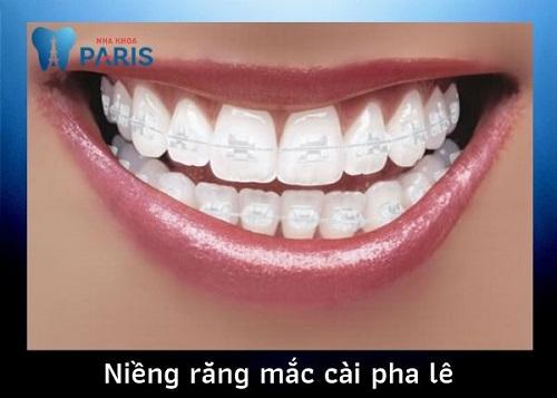 niềng răng mắc cài sapphire tại nha khoa Paris